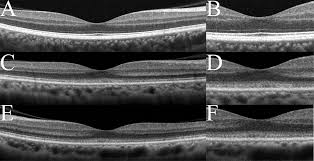 Optical Coherence Tomography - LA Retina Center